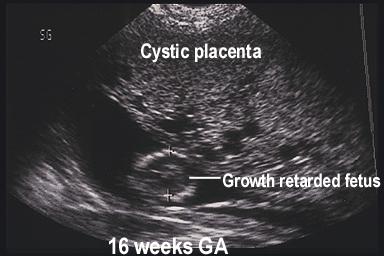 Partial Molar Pregnancy