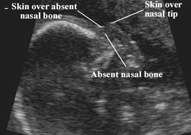 Short Nasal Bone
