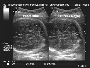 detecting fetal abnormalities through ultrasound essay Ebscohost serves thousands of libraries with premium essays, articles and other content including effectiveness of routine ultrasonography in detecting fetal structural abnormalities in a.