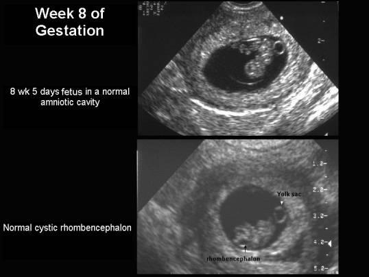 Week 8 Of Gestation