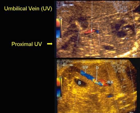 Anatomy of the Umbilical Vein