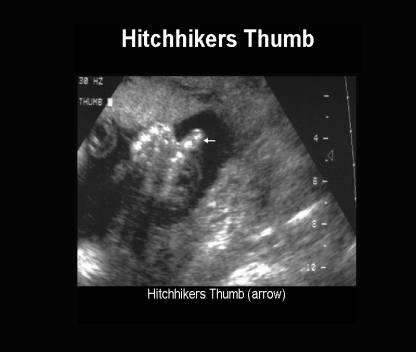 Hitchhiker's Thumb