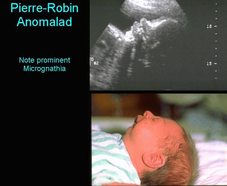 Pierre Robin Sequence in Denmark: A Retrospective ...