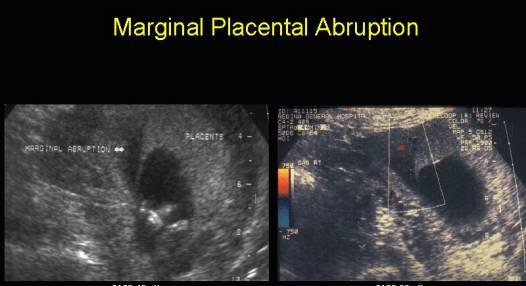 Ultrasound of Placental Hematoma and Abruption