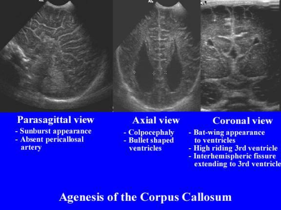 Ultrasound Of Callosal Agenesis