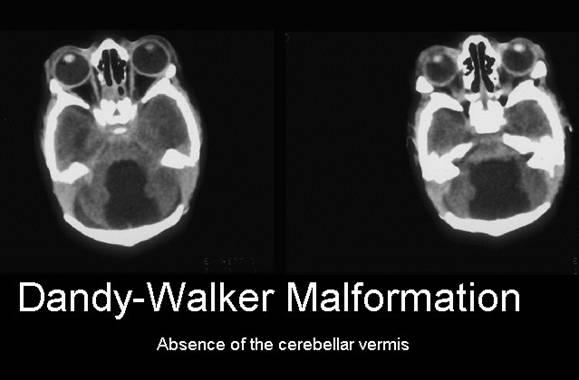 ultrasound of dandy-walker malformation, Skeleton