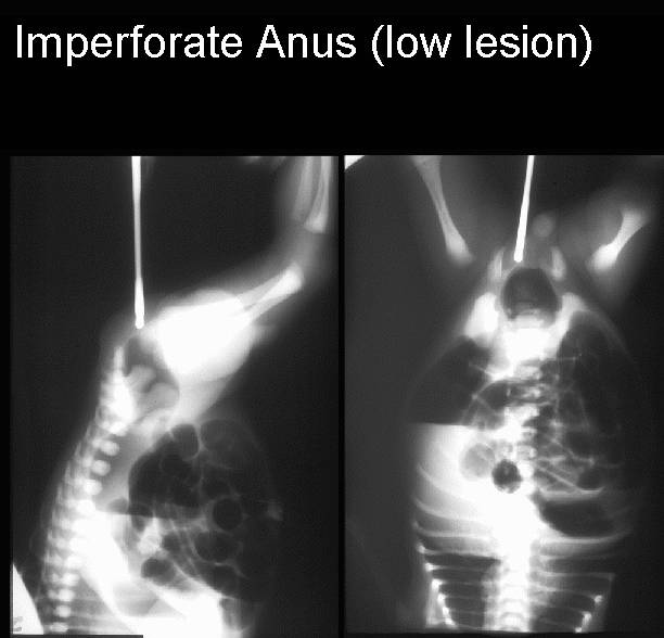 atresia imperforate anus Anal